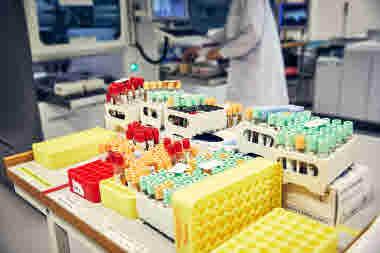 Biomedicinsk analytiker på Gävle sjukhus mars 2021. BMA massor av prover och provrör på kemlabb kemlab